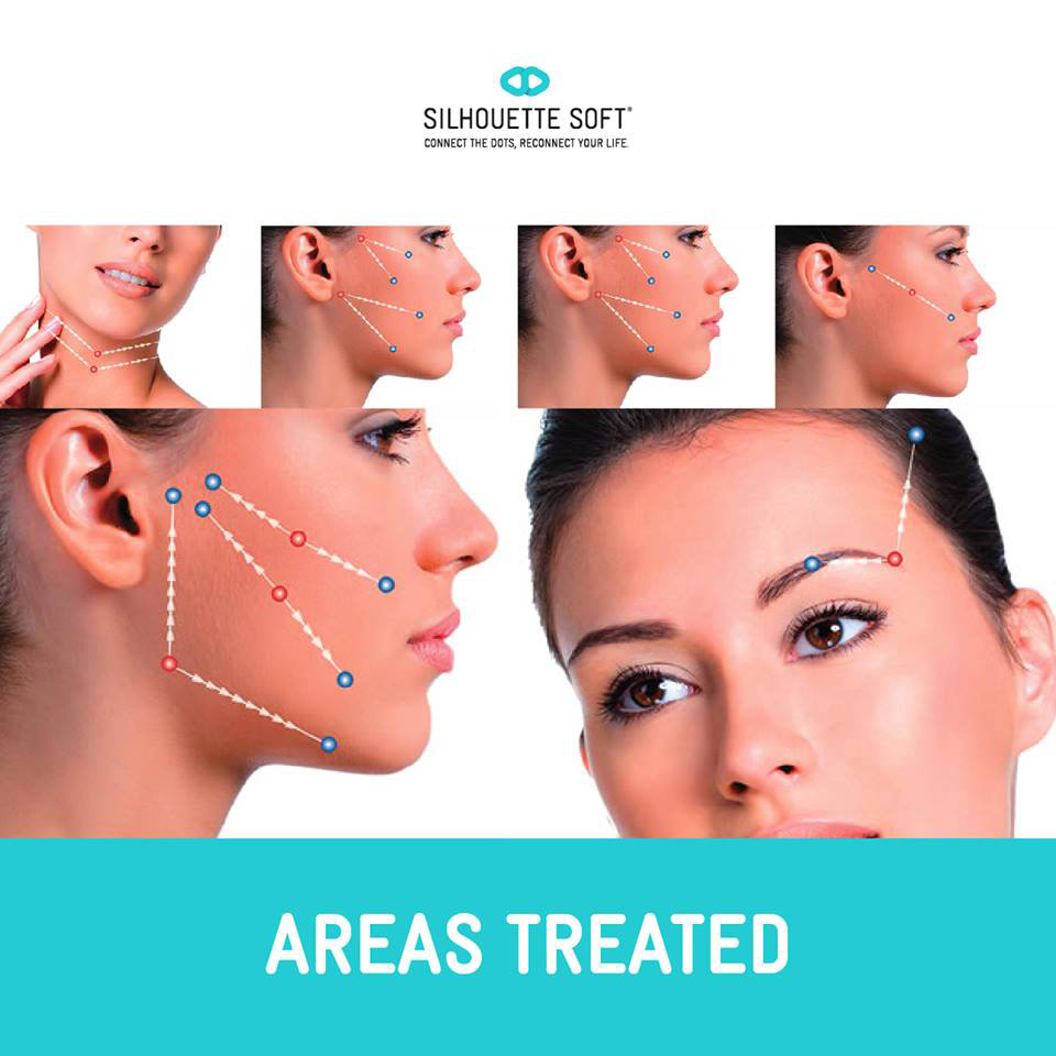 Face lift using Silhouette Thread Lift in Dublin area and