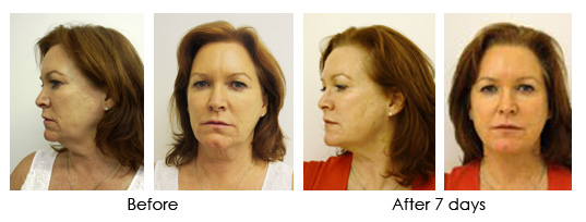 Face lift using Silhouette Thread Lift in Dublin area and Blackrock