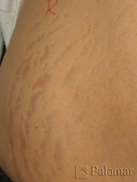 Stretch marks before 3