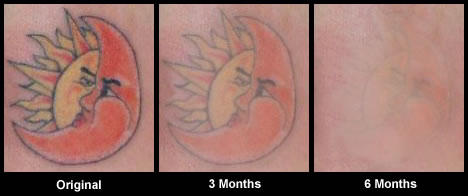 Tattoo before and after 1